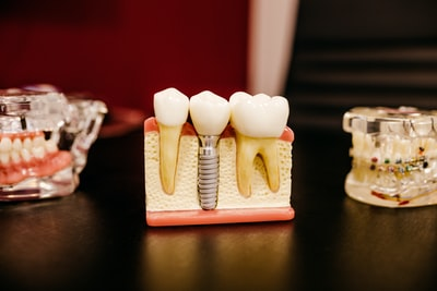 How to get dental coverage in the Trump era